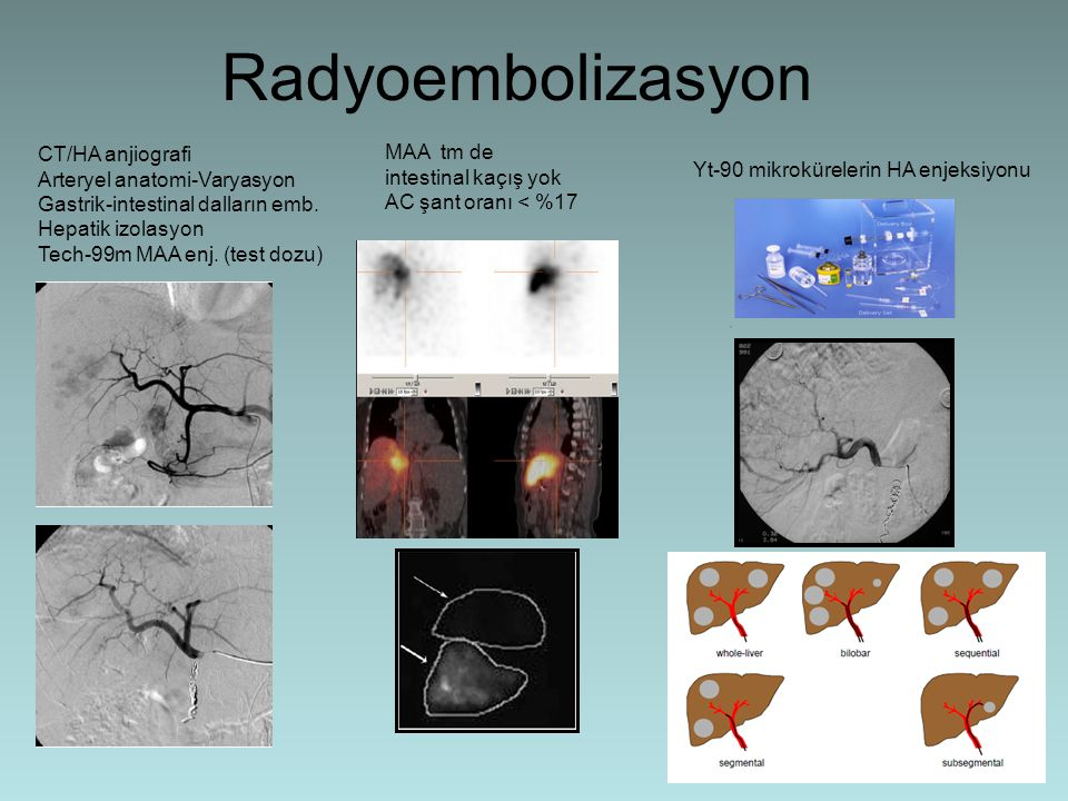 Radyoembolizasyon CT/HA anjiografi Arteryel anatomi-Varyasyon Gastrik-intestinal dalların emb. Hepatik izolasyon Tech-99m MAA enj. (test dozu) MAA tm