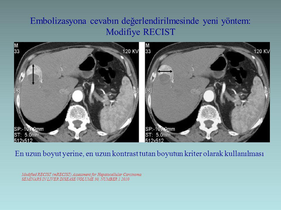 Embolizasyona cevabın değerlendirilmesinde yeni yöntem: Modifiye RECIST Modified RECIST (mRECIST) Assessment for Hepatocellular Carcinoma SEMINARS IN