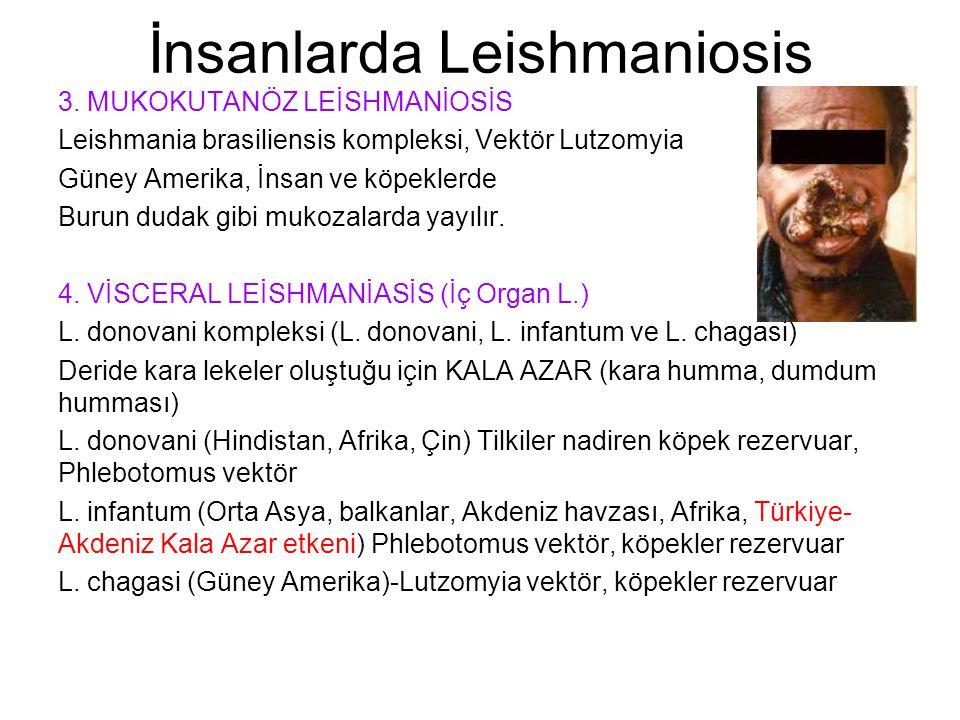 İnsanlarda Leishmaniosis 3. MUKOKUTANÖZ LEİSHMANİOSİS Leishmania brasiliensis kompleksi, Vektör Lutzomyia Güney Amerika, İnsan ve köpeklerde Burun dud
