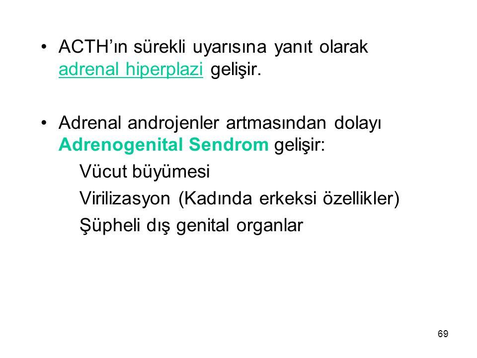 ACTH'ın sürekli uyarısına yanıt olarak adrenal hiperplazi gelişir. Adrenal androjenler artmasından dolayı Adrenogenital Sendrom gelişir: Vücut büyümes
