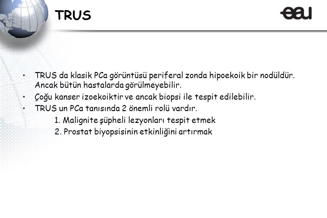 TRUS TRUS da klasik PCa görüntüsü periferal zonda hipoekoik bir nodüldür.