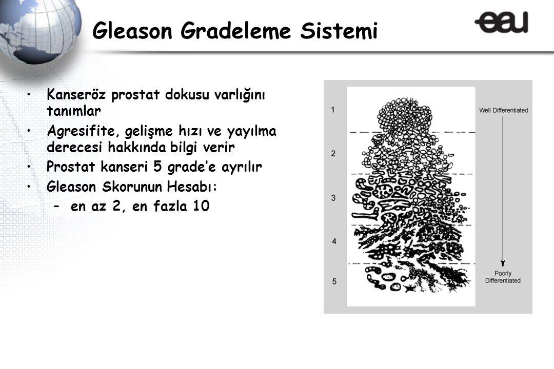 Gleason Gradeleme Sistemi Kanseröz prostat dokusu varlığını tanımlar Agresifite, gelişme hızı ve yayılma derecesi hakkında bilgi verir Prostat kanseri 5 grade'e ayrılır Gleason Skorunun Hesabı: –en az 2, en fazla 10