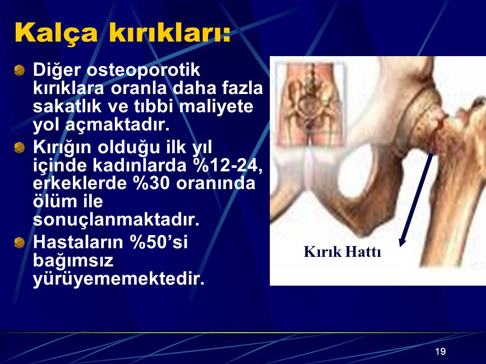 19 Kalça kırıkları: Diğer osteoporotik kırıklara oranla daha fazla sakatlık ve tıbbi maliyete yol açmaktadır. Kırığın olduğu ilk yıl içinde kadınlarda