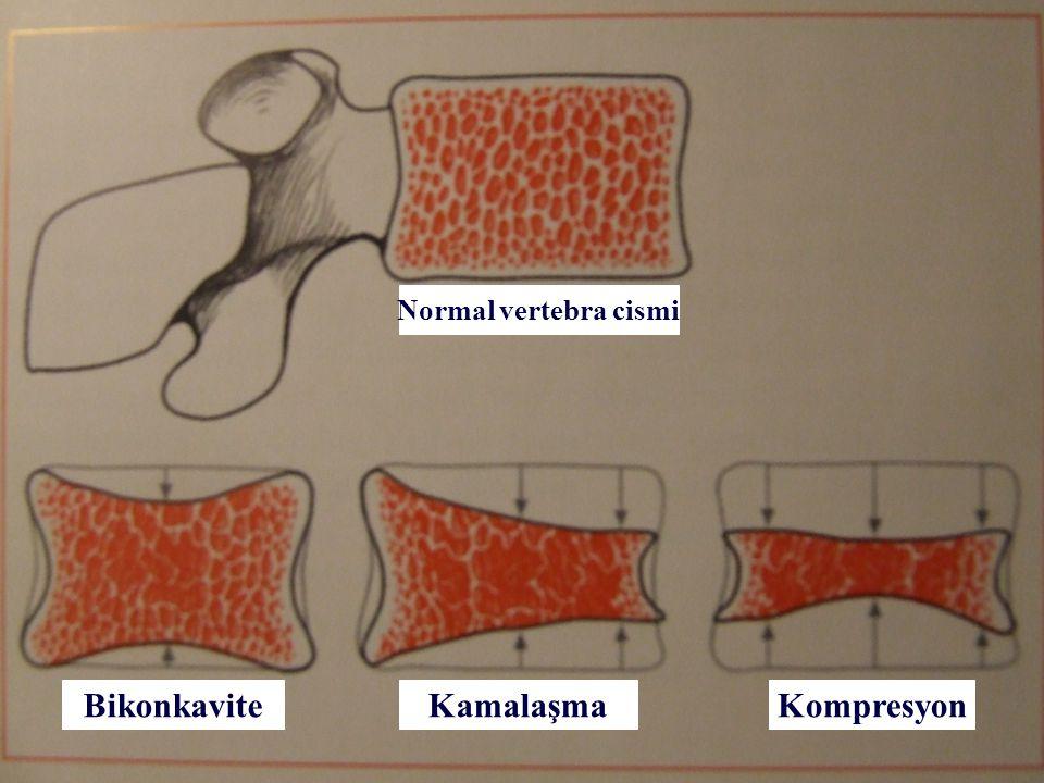 23 Normal vertebra cismi BikonkaviteKamalaşmaKompresyon