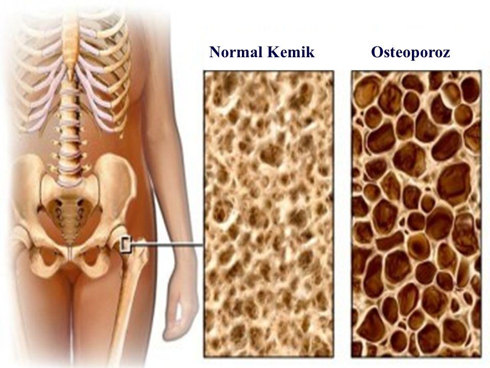 3 Normal Kemik Osteoporoz