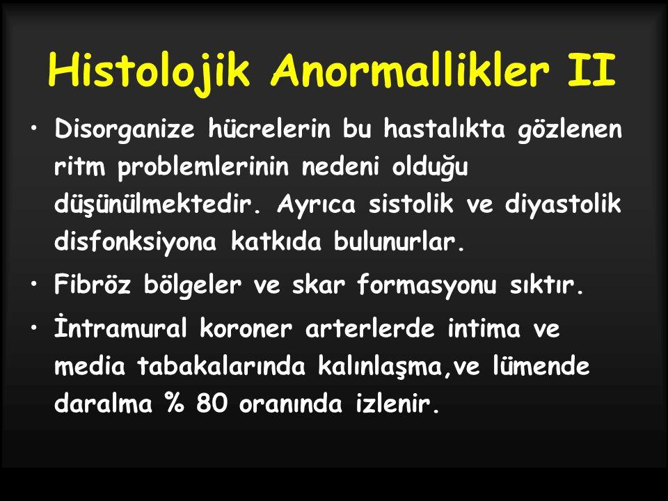 Histolojik Anormallikler II Disorganize hücrelerin bu hastalıkta gözlenen ritm problemlerinin nedeni olduğu düşünülmektedir. Ayrıca sistolik ve diyast