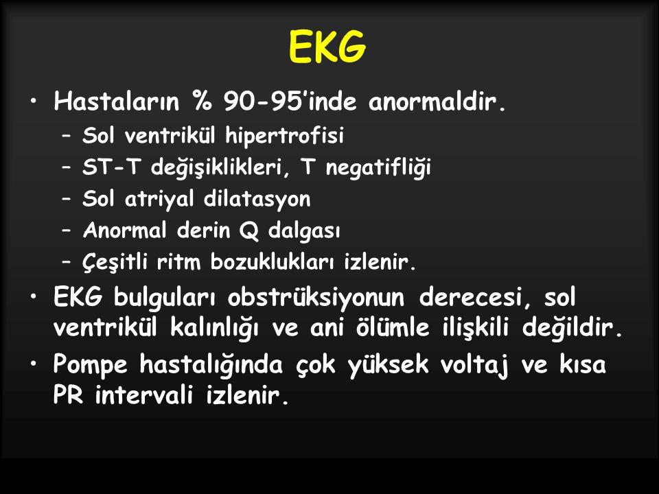 EKG Hastaların % 90-95'inde anormaldir. –Sol ventrikül hipertrofisi –ST-T değişiklikleri, T negatifliği –Sol atriyal dilatasyon –Anormal derin Q dalga