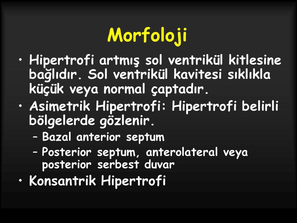 Morfoloji Hipertrofi artmış sol ventrikül kitlesine bağlıdır. Sol ventrikül kavitesi sıklıkla küçük veya normal çaptadır. Asimetrik Hipertrofi: Hipert