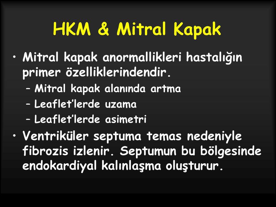 HKM & Mitral Kapak Mitral kapak anormallikleri hastalığın primer özelliklerindendir. –Mitral kapak alanında artma –Leaflet'lerde uzama –Leaflet'lerde