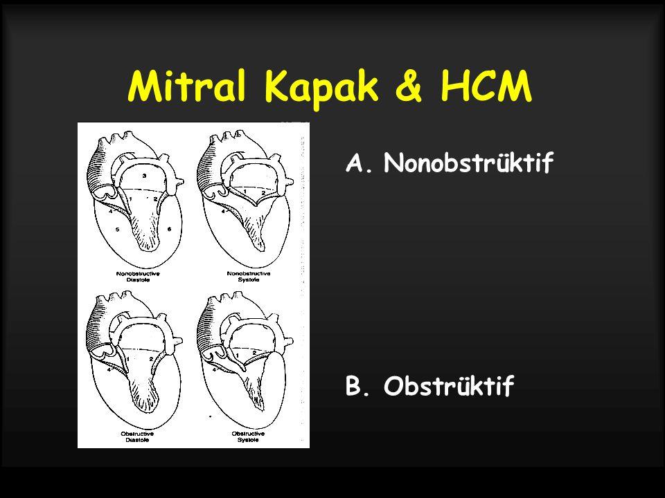 Mitral Kapak & HCM A.Nonobstrüktif B.Obstrüktif
