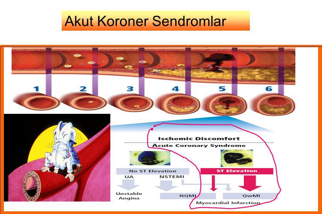 Akut Koroner Sendrom Patoloji EKG Anjiografi