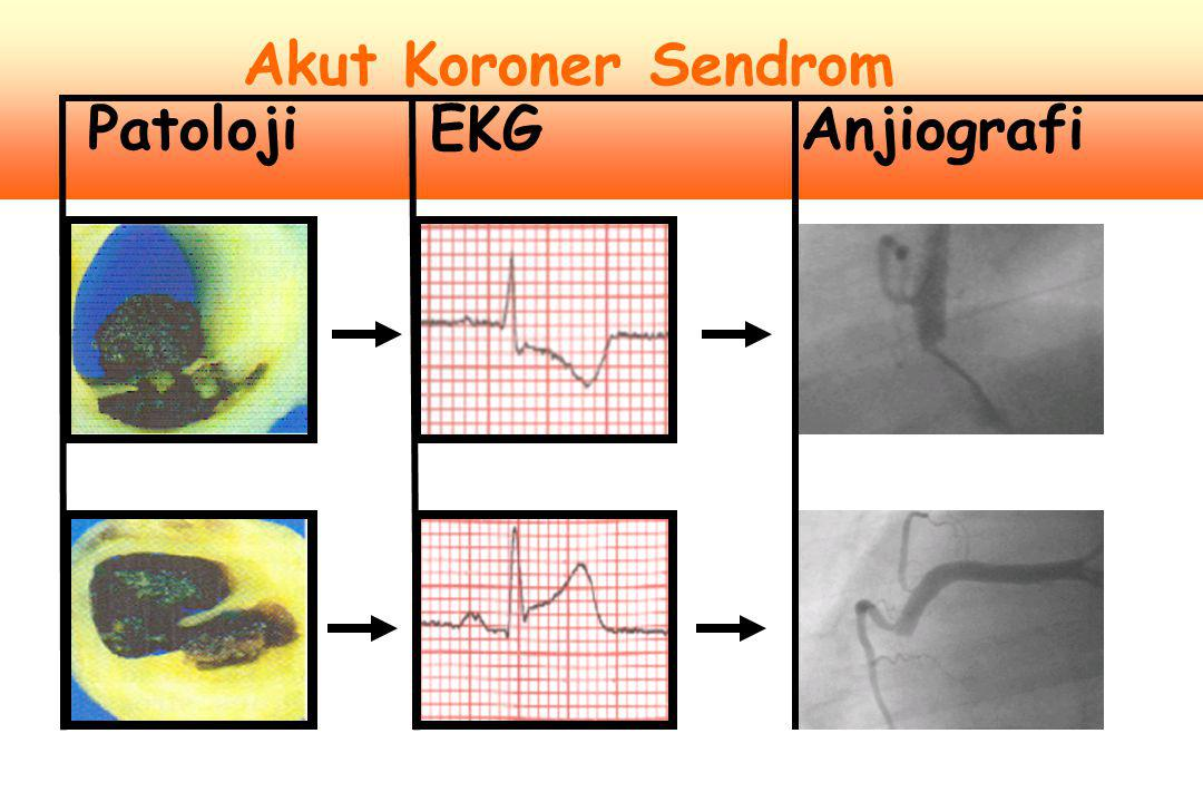 1.Aşağıdakilerden en az biri ile birlikte miyokardial nekrozun biyokimyasal göstergelerinde tipik artış a)İskemik semptomlar b)EKG'de patolojik Q dalga gelişimi c)İskemiyi gösteren EKG değişiklikleri (ST yükselmesi veya çökme) d)Görüntüleme i.Yeni canlı miyokard kaybının veya bölgesel duvar hareket bozukluğunun belirtisi 2.AMI'nın patolojik bulguları Kararsız Angina EKG Ekokardiyografi ENZİMENZİM