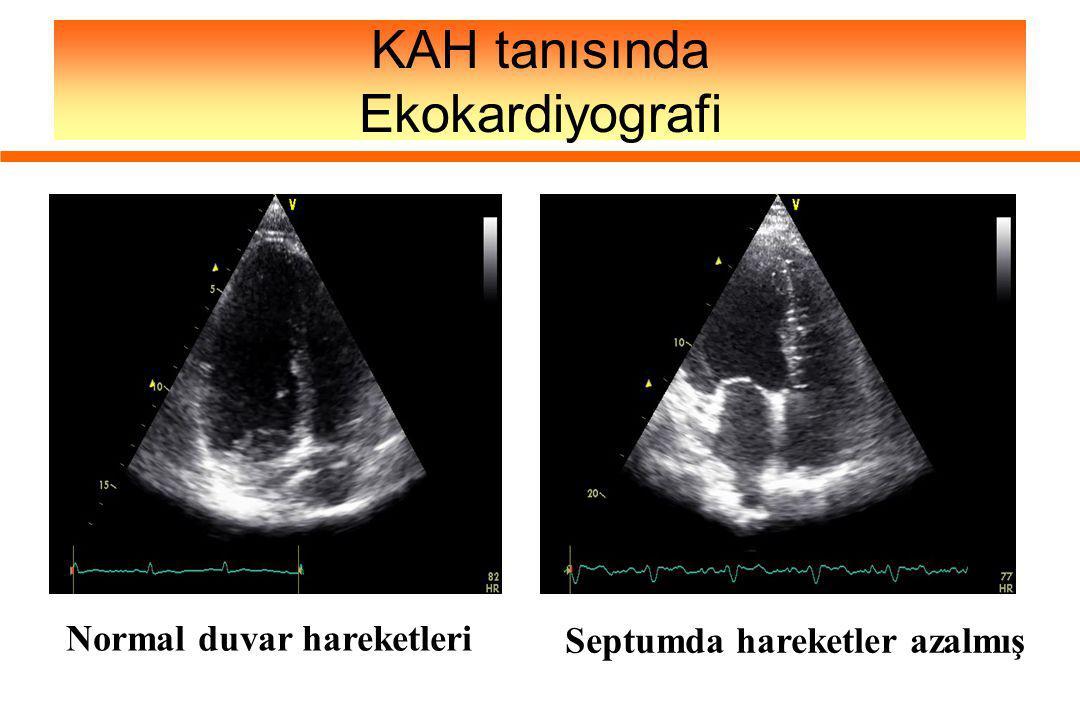 KAH tanısında Ekokardiyografi Septumda hareketler azalmış Normal duvar hareketleri