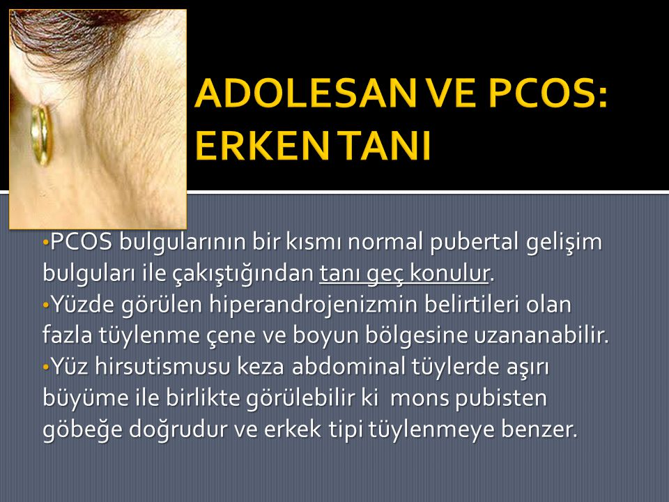 PCOS bulgularının bir kısmı normal pubertal gelişim bulguları ile çakıştığından tanı geç konulur. PCOS bulgularının bir kısmı normal pubertal gelişim