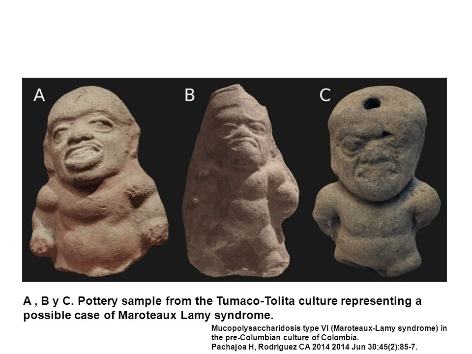 A, B y C. Pottery sample from the Tumaco-Tolita culture representing a possible case of Maroteaux Lamy syndrome. Mucopolysaccharidosis type VI (Marote