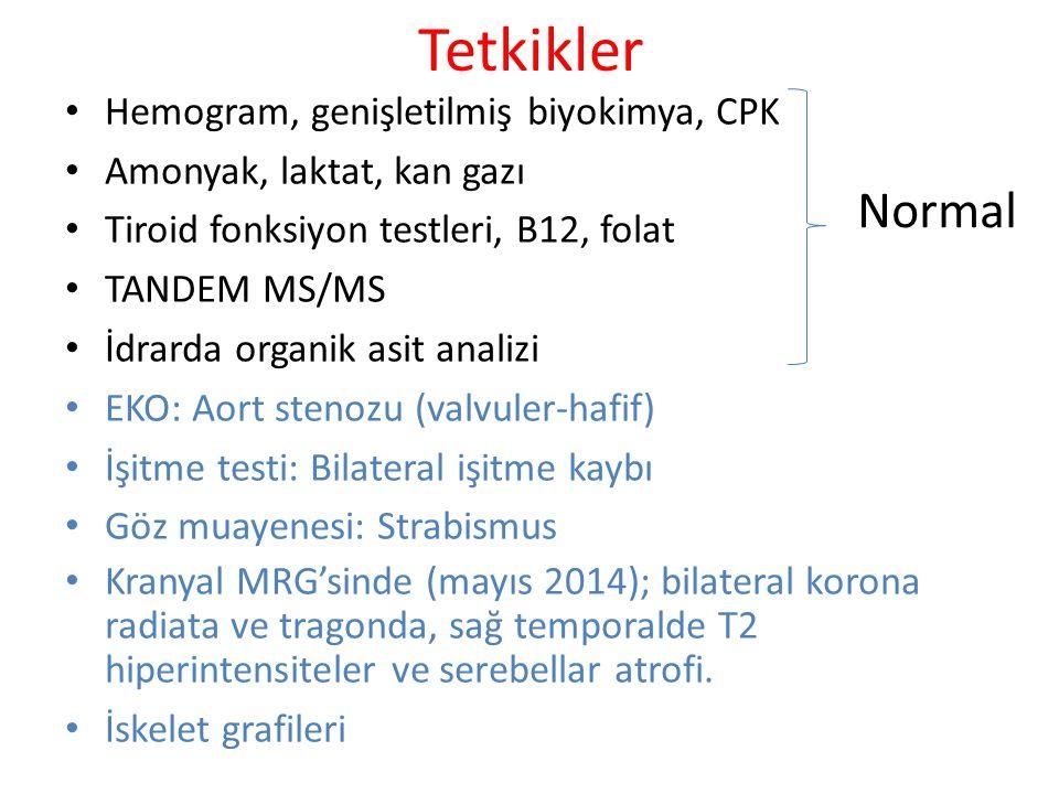 Tetkikler Hemogram, genişletilmiş biyokimya, CPK Amonyak, laktat, kan gazı Tiroid fonksiyon testleri, B12, folat TANDEM MS/MS İdrarda organik asit ana