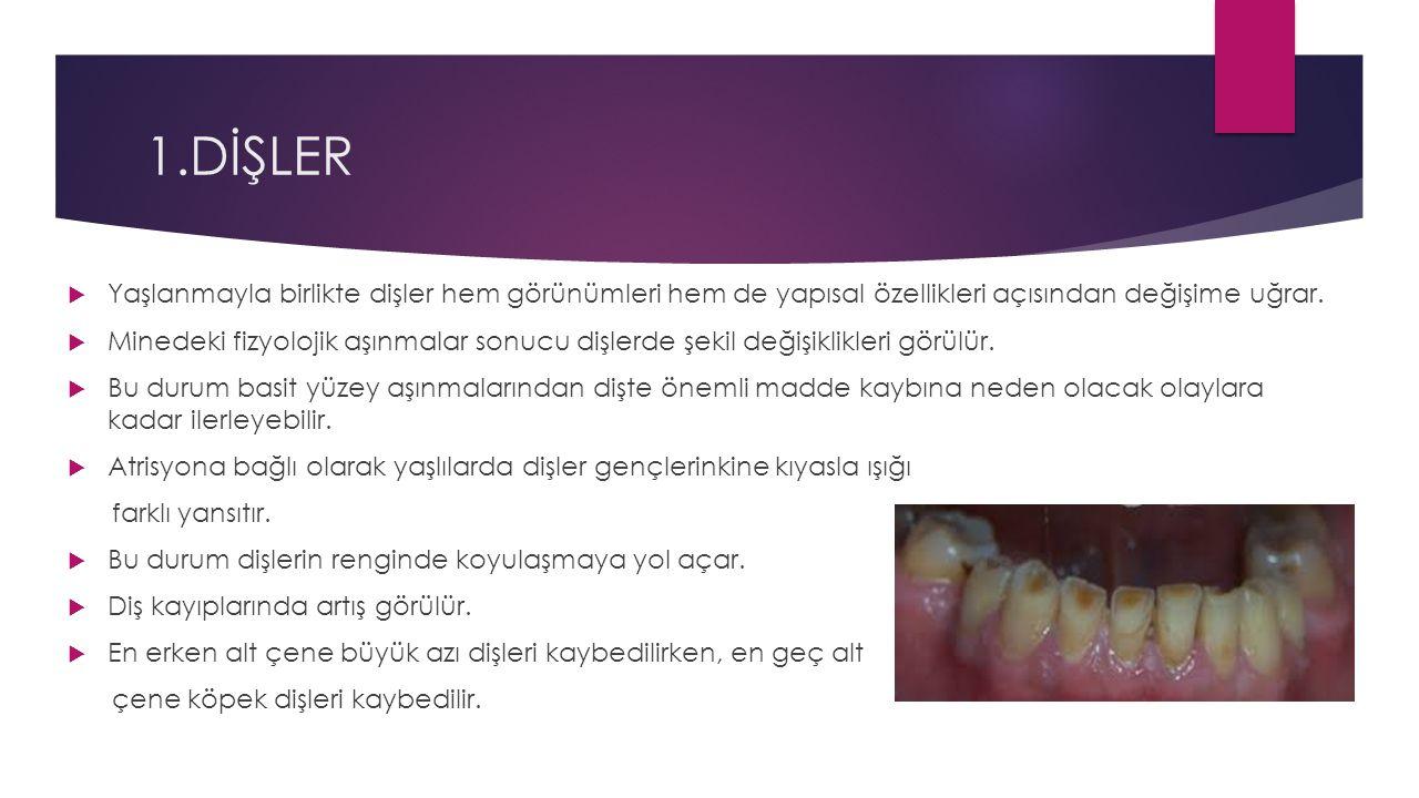 1.DİŞLER  Yaşlanmayla birlikte dişler hem görünümleri hem de yapısal özellikleri açısından değişime uğrar.  Minedeki fizyolojik aşınmalar sonucu diş