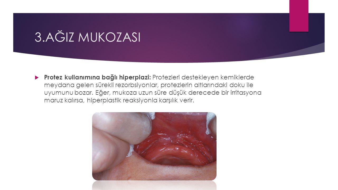 3.AĞIZ MUKOZASI  Protez kullanımına bağlı hiperplazi: Protezleri destekleyen kemiklerde meydana gelen sürekli rezorbsiyonlar, protezlerin altlarındaki doku ile uyumunu bozar.