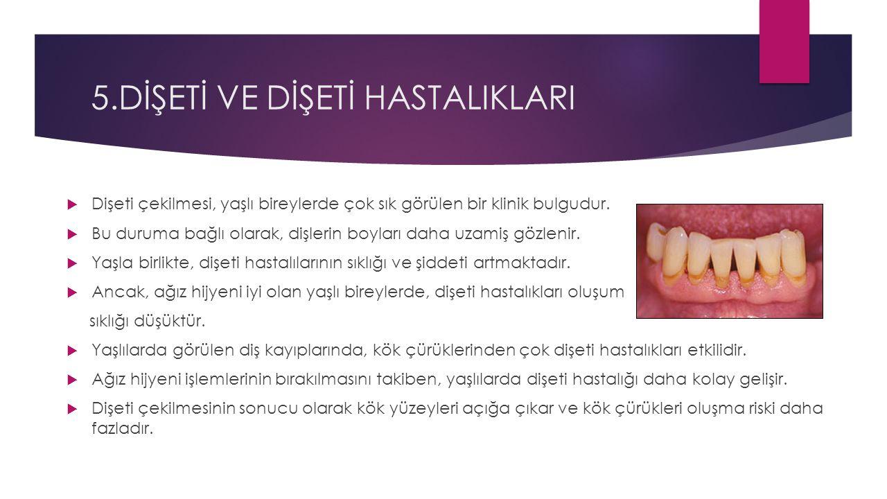 5.DİŞETİ VE DİŞETİ HASTALIKLARI  Dişeti çekilmesi, yaşlı bireylerde çok sık görülen bir klinik bulgudur.  Bu duruma bağlı olarak, dişlerin boyları d