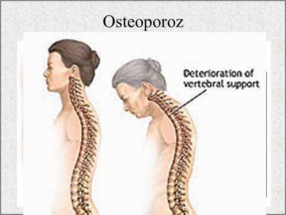 / 3215 Osteoporoz