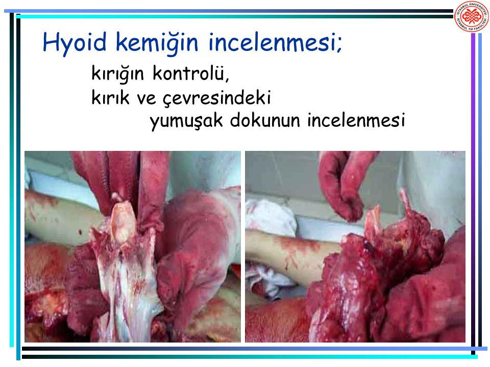 Hyoid kemiğin incelenmesi; kırığın kontrolü, kırık ve çevresindeki yumuşak dokunun incelenmesi