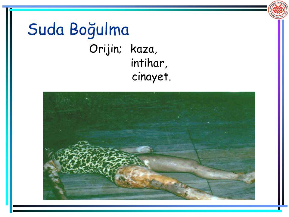 Suda Boğulma Orijin; kaza, intihar, cinayet.