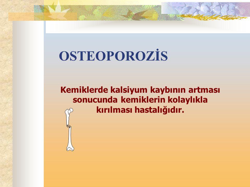 OSTEOPOROZİS Kemiklerde kalsiyum kaybının artması sonucunda kemiklerin kolaylıkla kırılması hastalığıdır.