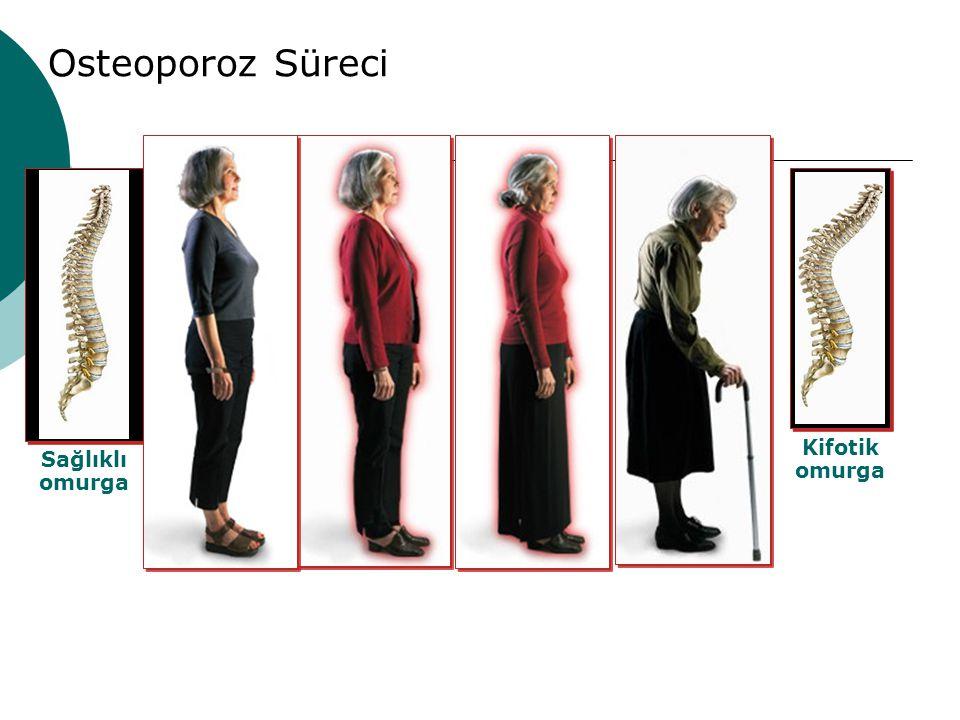 Osteoporoz Süreci Sağlıklı omurga Kifotik omurga