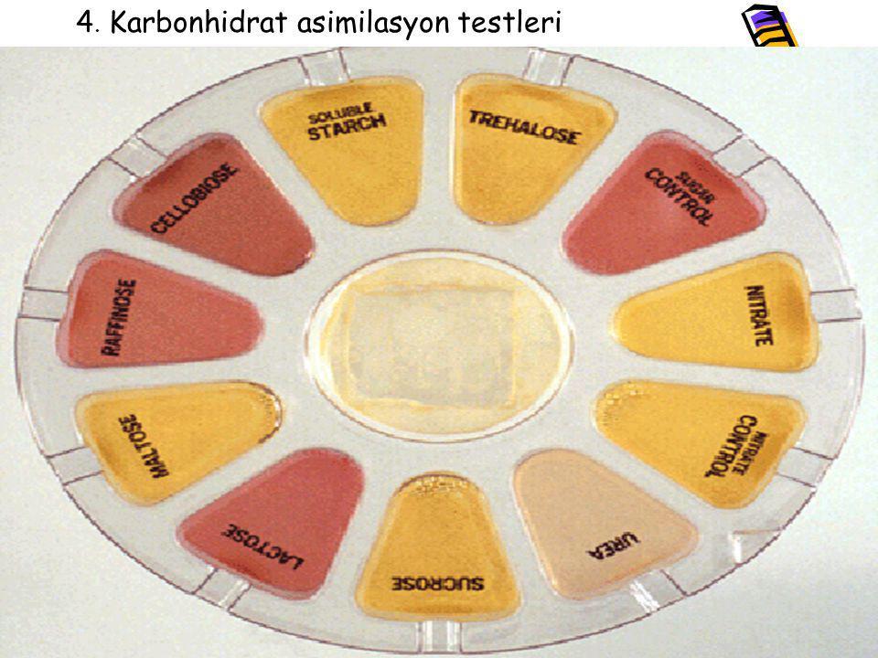 4. Karbonhidrat asimilasyon testleri