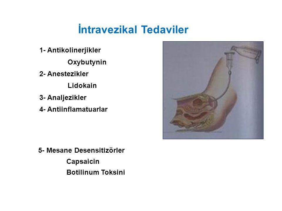 İntravezikal Tedaviler 1- Antikolinerjikler Oxybutynin 2- Anestezikler Lidokain 3- Analjezikler 4- Antiinflamatuarlar 5- Mesane Desensitizörler Capsaicin Botilinum Toksini