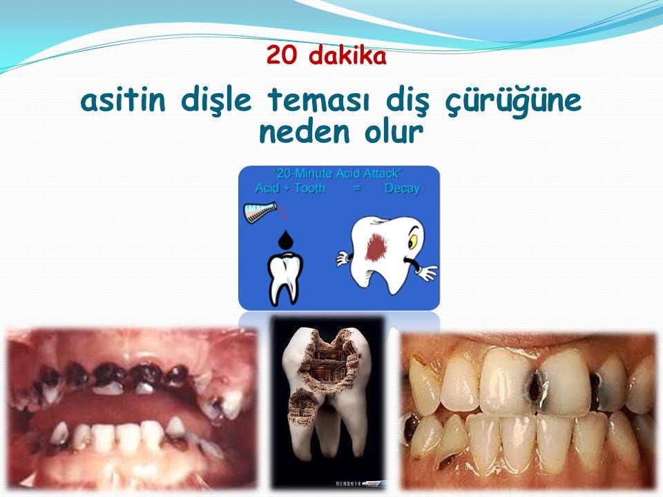 asitin dişle teması diş çürüğüne neden olur 20 dakika