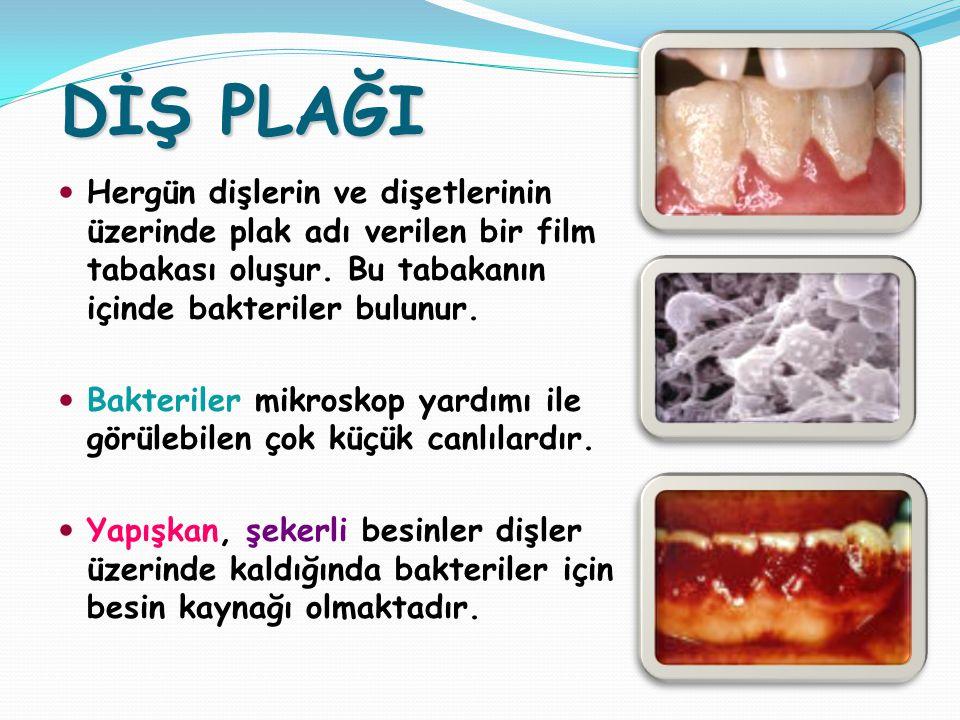 DİŞ PLAĞI Hergün dişlerin ve dişetlerinin üzerinde plak adı verilen bir film tabakası oluşur.