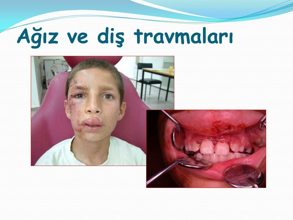 Ağız ve diş travmaları