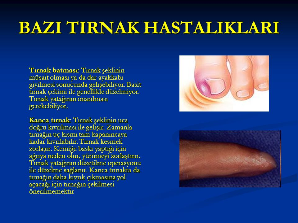 BAZI TIRNAK HASTALIKLARI Tırnak batması: Tırnak şeklinin müsait olması ya da dar ayakkabı giyilmesi sonucunda gelişebiliyor.