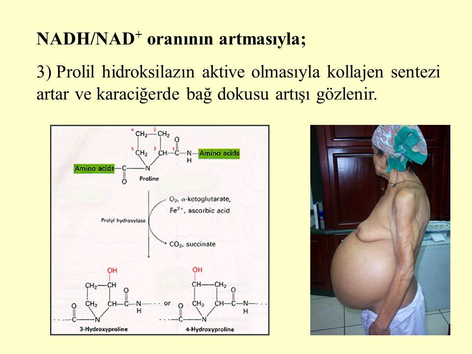 19 NADH/NAD + oranının artmasıyla; 3) Prolil hidroksilazın aktive olmasıyla kollajen sentezi artar ve karaciğerde bağ dokusu artışı gözlenir.