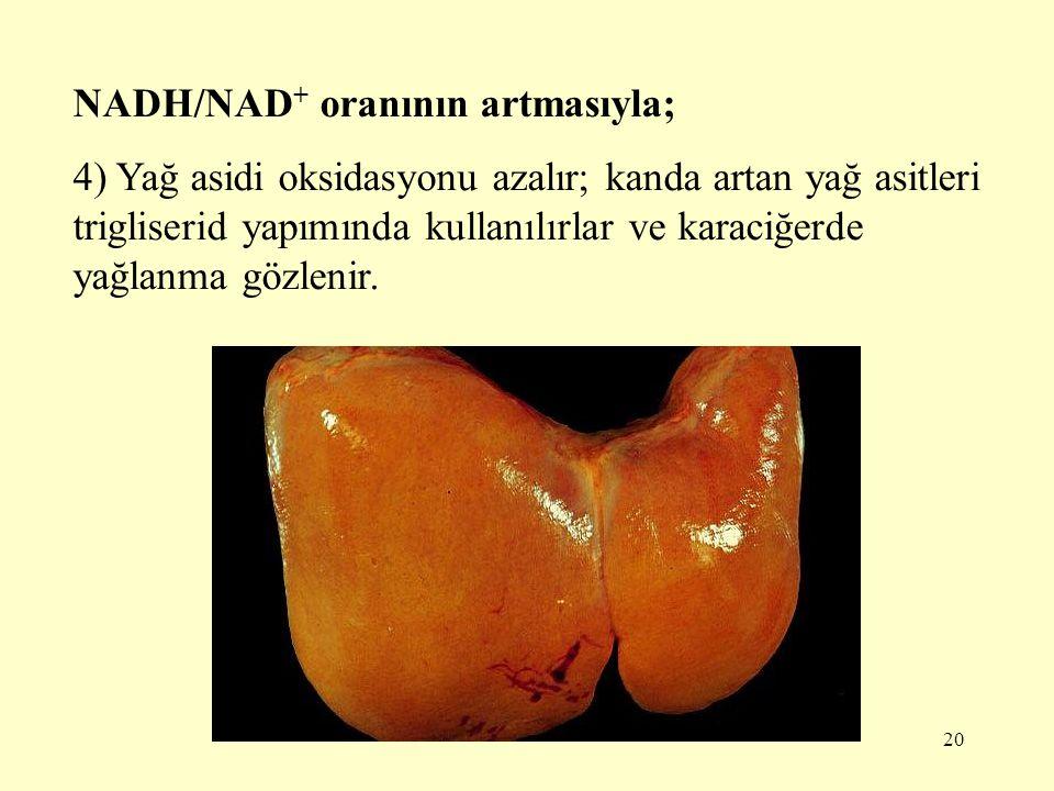 20 NADH/NAD + oranının artmasıyla; 4) Yağ asidi oksidasyonu azalır; kanda artan yağ asitleri trigliserid yapımında kullanılırlar ve karaciğerde yağlan