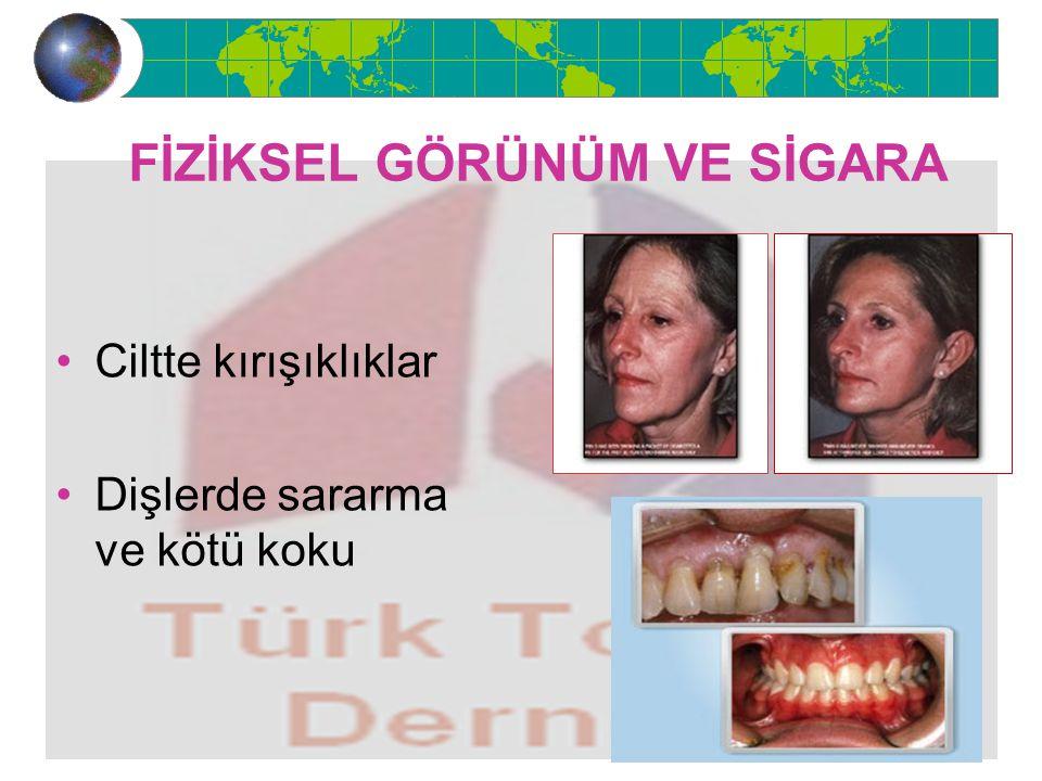 FİZİKSEL GÖRÜNÜM VE SİGARA Ciltte kırışıklıklar Dişlerde sararma ve kötü koku