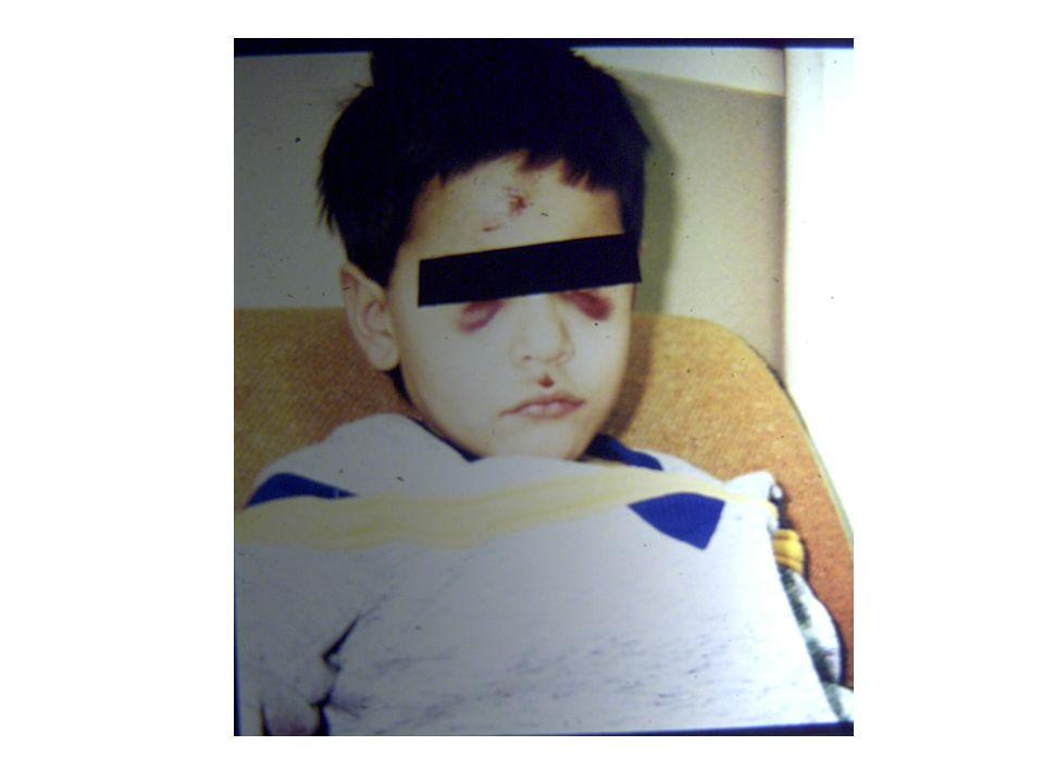 Davranış: Fiziksel istismara uğramış çocukların büyük çoğunluğu antisosyal davranışlar gösterebilirler.