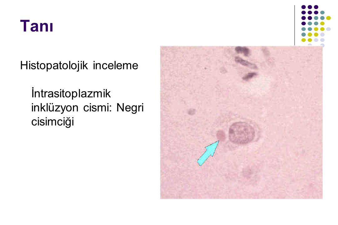 Tanı Histopatolojik inceleme İntrasitoplazmik inklüzyon cismi: Negri cisimciği