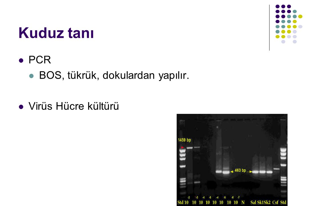 Kuduz tanı PCR BOS, tükrük, dokulardan yapılır. Virüs Hücre kültürü