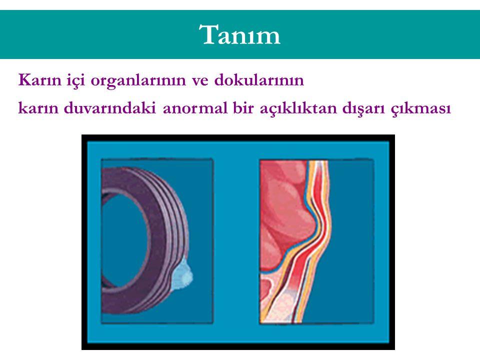 Tanım Karın içi organlarının ve dokularının karın duvarındaki anormal bir açıklıktan dışarı çıkması
