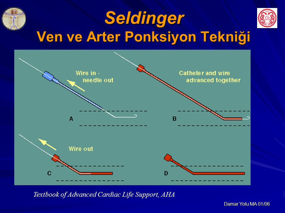 Damar Yolu MA 01/06 Seldinger Ven ve Arter Ponksiyon Tekniği Textbook of Advanced Cardiac Life Support, AHA