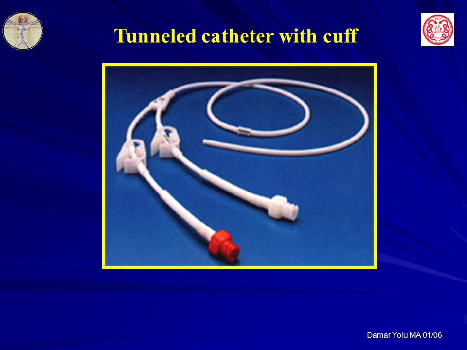 Tunneled catheter with cuff