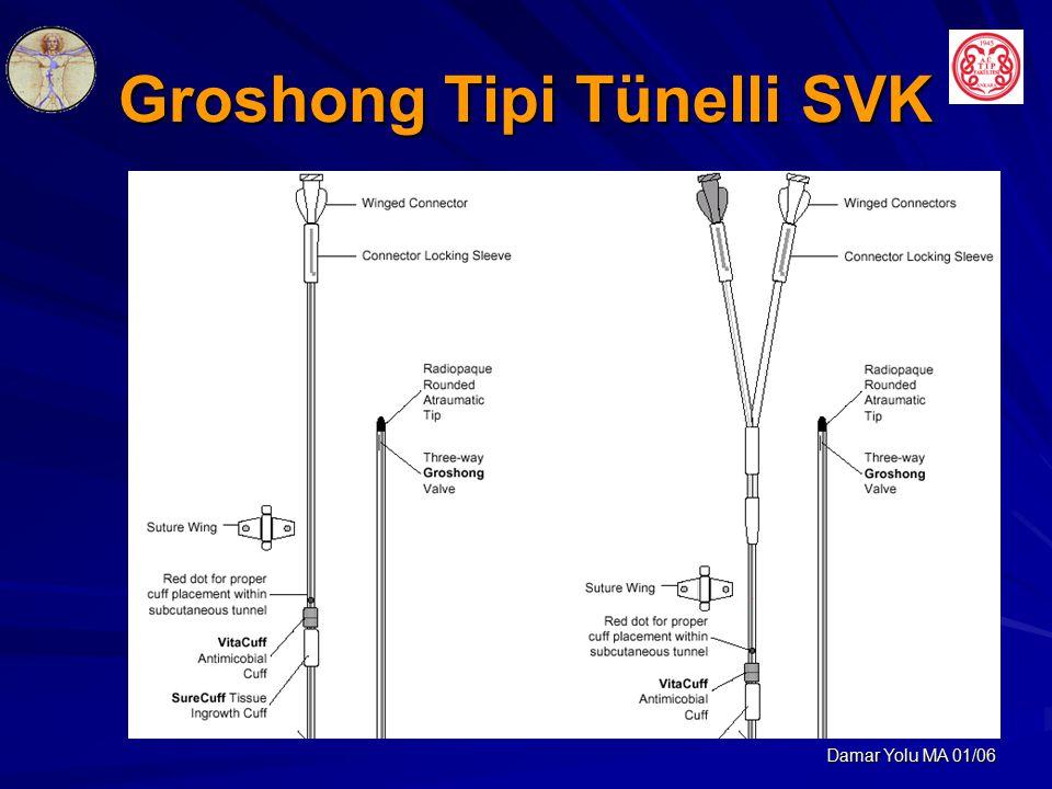 Damar Yolu MA 01/06 Groshong Tipi Tünelli SVK