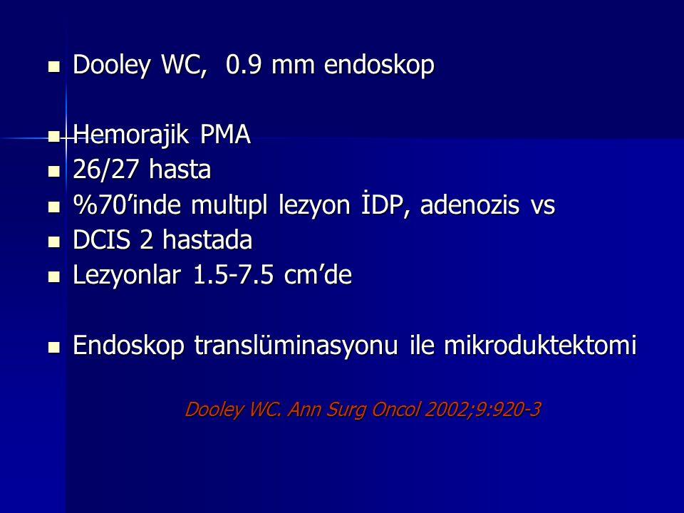 Dooley WC, 0.9 mm endoskop Dooley WC, 0.9 mm endoskop Hemorajik PMA Hemorajik PMA 26/27 hasta 26/27 hasta %70'inde multıpl lezyon İDP, adenozis vs %70'inde multıpl lezyon İDP, adenozis vs DCIS 2 hastada DCIS 2 hastada Lezyonlar 1.5-7.5 cm'de Lezyonlar 1.5-7.5 cm'de Endoskop translüminasyonu ile mikroduktektomi Endoskop translüminasyonu ile mikroduktektomi Dooley WC.