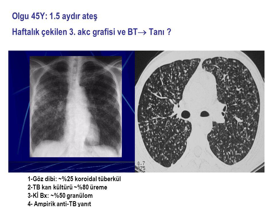 Olgu 45Y: 1.5 aydır ateş Haftalık çekilen 3. akc grafisi ve BT  Tanı ? 1-Göz dibi: ~%25 koroidal tüberkül 2-TB kan kültürü ~%80 üreme 3-Kİ Bx: ~%50 g