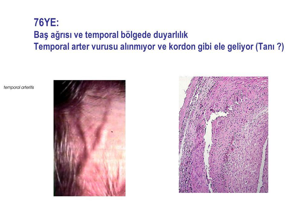 76YE: Baş ağrısı ve temporal bölgede duyarlılık Temporal arter vurusu alınmıyor ve kordon gibi ele geliyor (Tanı ?)