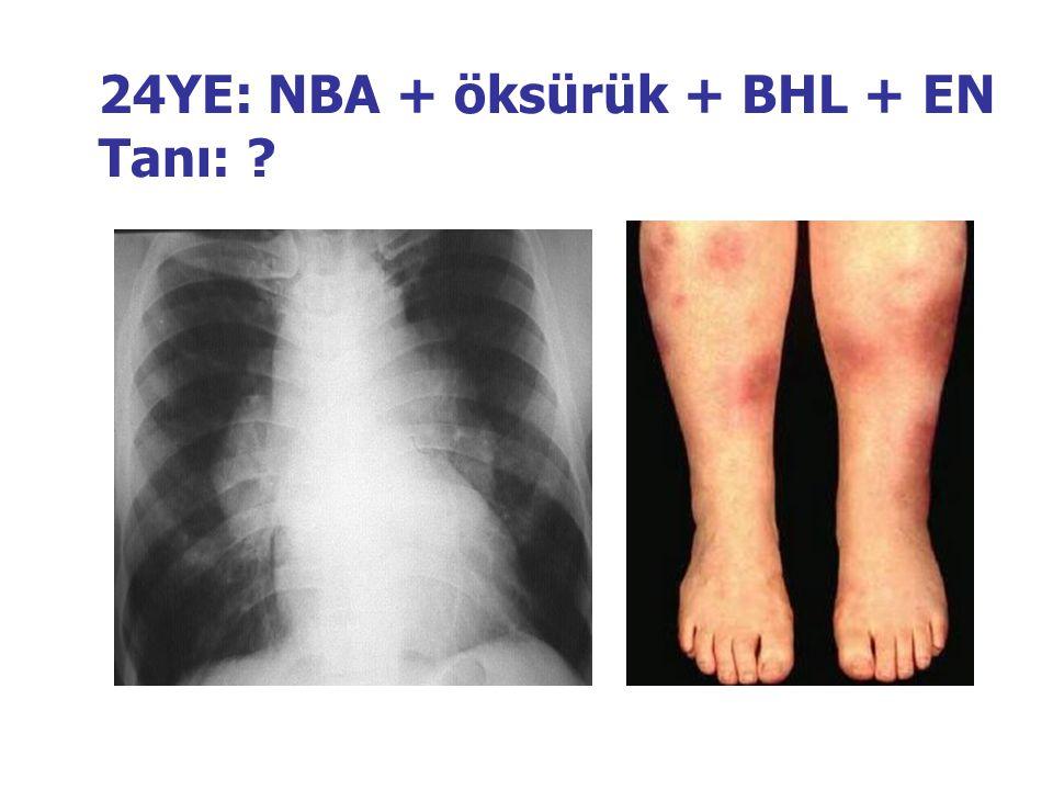 24YE: NBA + öksürük + BHL + EN Tanı: ?