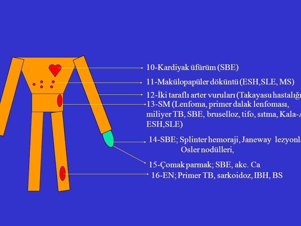 10-Kardiyak üfürüm (SBE) 11-Makülopapüler döküntü (ESH,SLE, MS) 12-İki taraflı arter vuruları (Takayasu hastalığı) 13-SM (Lenfoma, primer dalak lenfom