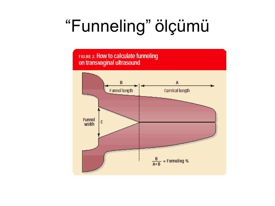 """""""Funneling"""" ölçümü"""